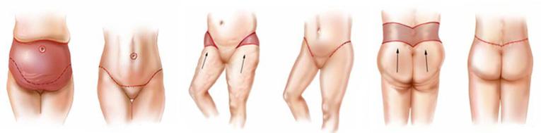 cirurgia plástica após a bariátrica 1